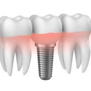 Implantologia Monza Brianza