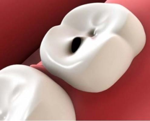 Mal di denti, diagnosi rimedi e cure