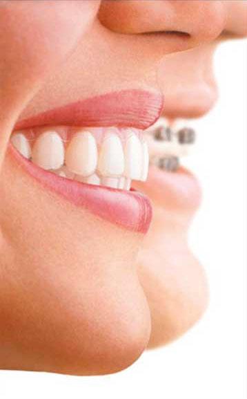 ortodonzia invisibile allineatori