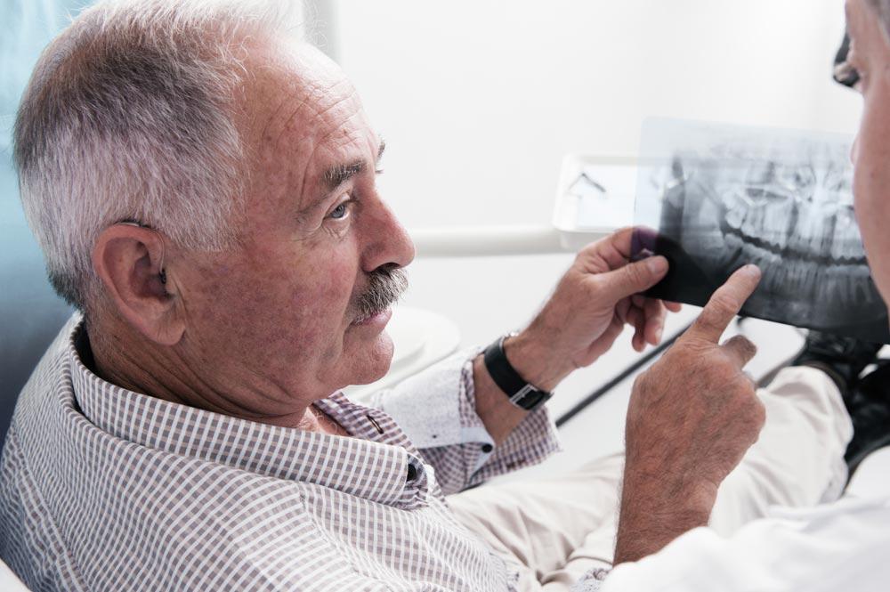 Protesi dentali anziani Monza Brianza