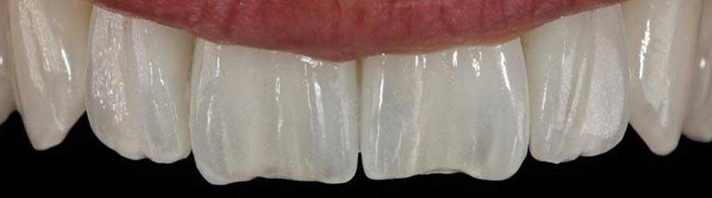 Protesi dentali fisse Monza Brianza