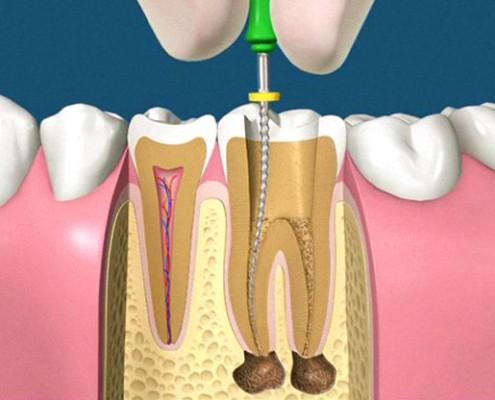 Perchè devitalizzare i denti?
