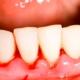 Parodontologia Monza brianza