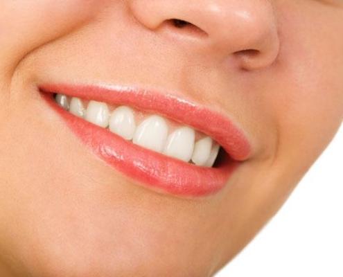 sorriso denti