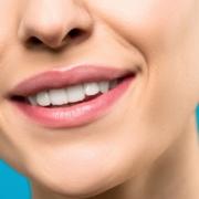 Paradontite sorriso dentista